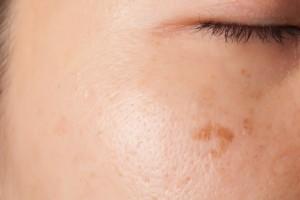 Detail van vrouw met last van grove poriën