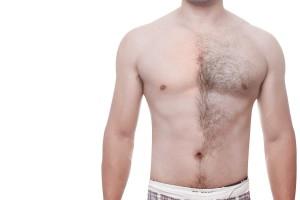 Man met 50% behaarde en 50% onthaarde borstkas